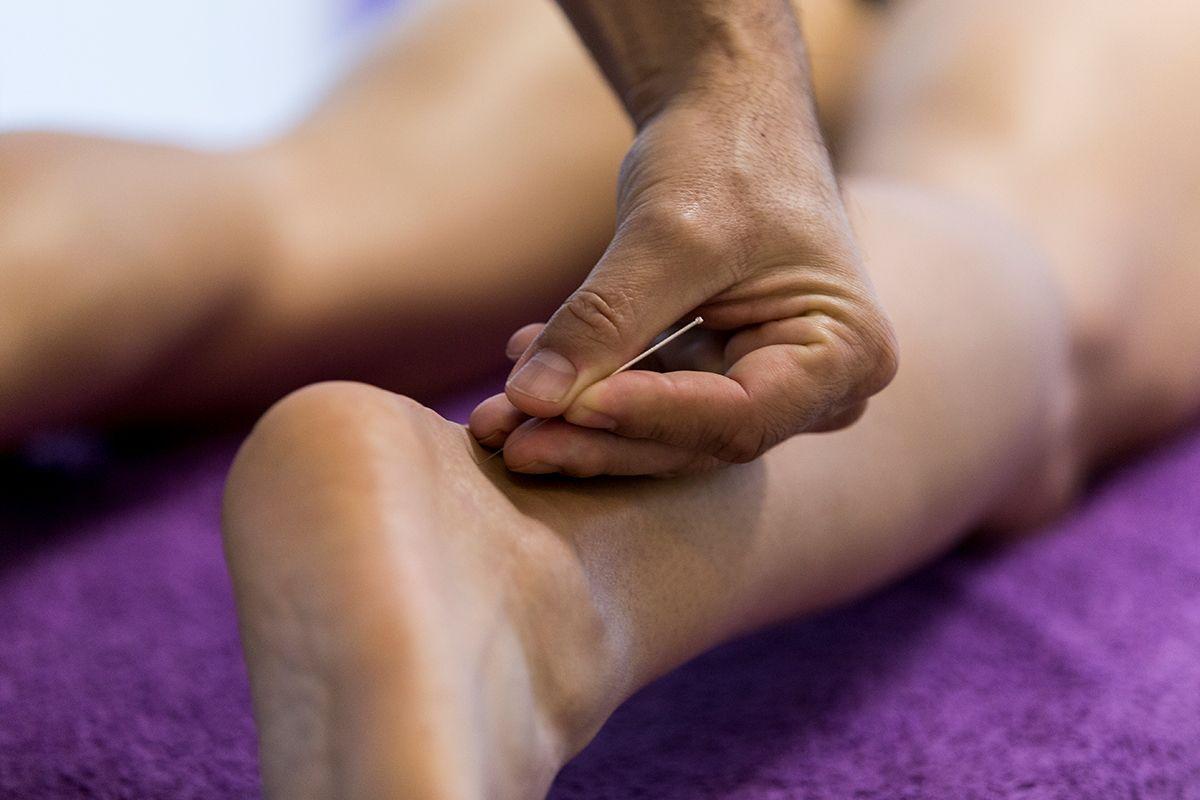 trabajo de acupuntura